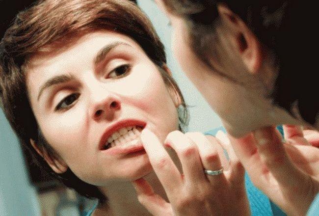 Чим полоскати рот після видалення зуба?