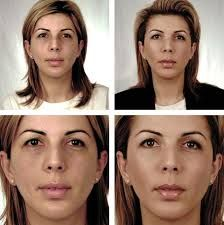 Дія препарату surgiderm для губ