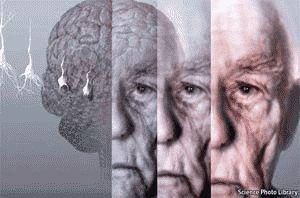 Інфрачервоне випромінювання допоможе вилікувати хворобу альцгеймера