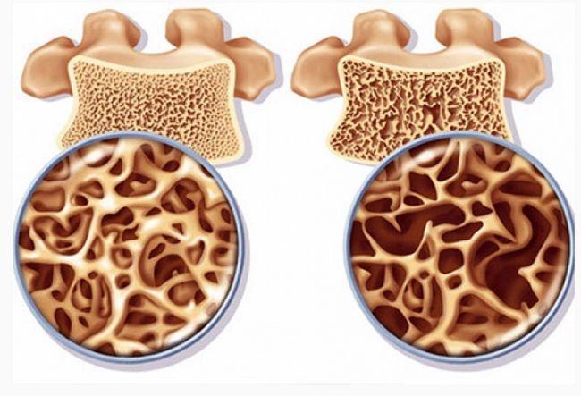 Ефективне лікування остеопорозу народними засобами