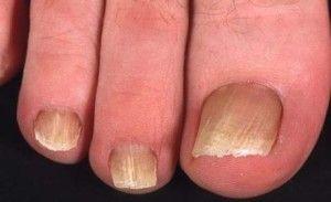 Ефективні засоби від грибка на нігтях ніг