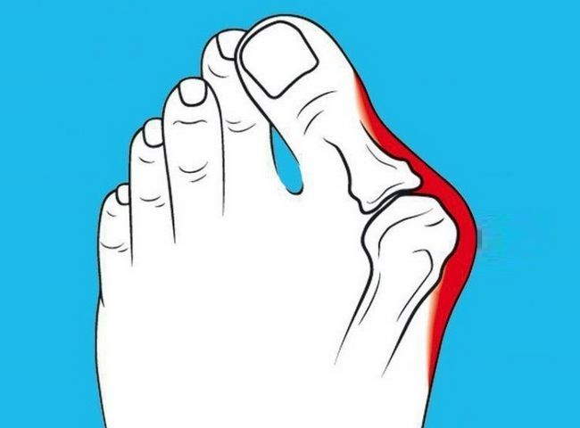 Як можна лікувати народними засобами кісточку на нозі