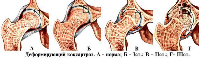 Якою має бути лікувальна гімнастика при коксартрозе тазостегнового суглоба 2 ступеня