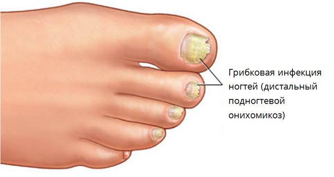 Підступний грибок: як зберегти красу і здоров`я нігтів на ногах