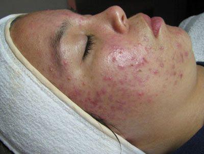 Лікування вугрів на обличчі народними засобами