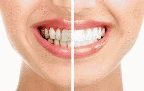 Методи видалення зубного каменю
