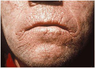 Мінеральні речовини необхідні для здоров`я шкіри