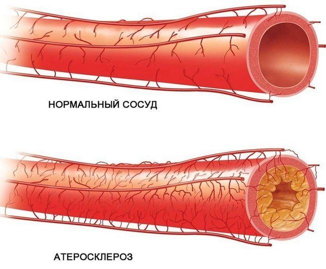 Народні засоби проти атеросклерозу судин нижніх кінцівок