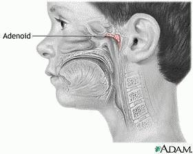 Операція або лікування аденоїдів народними засобами