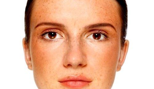 Пігментні плями на обличчі