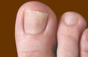 Застосування біфосіна від грибка нігтів
