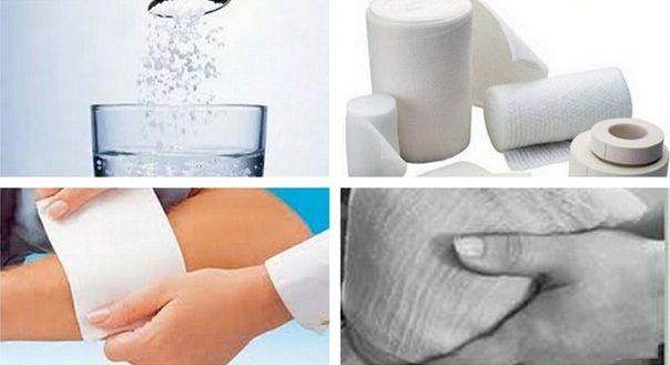 Різні народні засоби лікування варикозного розширення вен в домашніх умовах