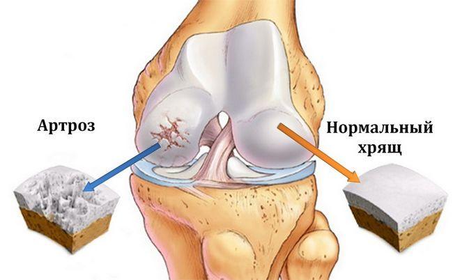Роль лікувальної фізкультури при артрозі колінного суглоба