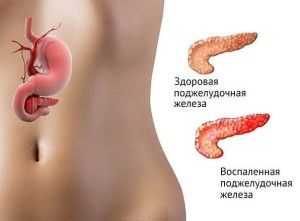 Цукровий діабет і пітливість - чи є зв`язок?
