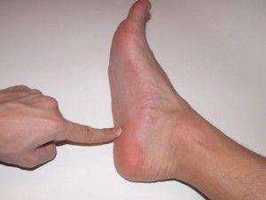 Симптоми і лікування жировика на нозі