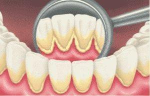 Стоматолог: зубний камінь